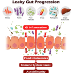 What to do to help leaky gut naturally